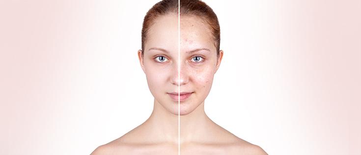 acne cura