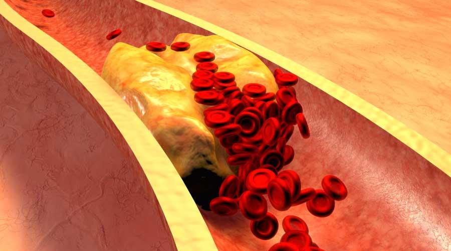 colesterolo alto cause
