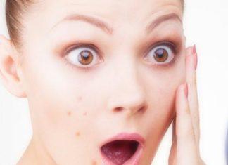curare acne giovanile con rimedi naturali